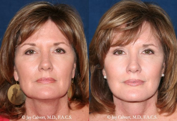 Dr. Jay Calvert, Beverly Hills Plastic Surgeon, comments on the facelift trend among Baby Boomers